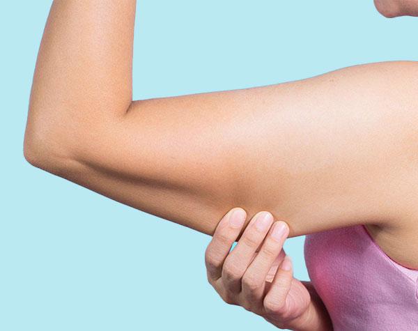 Gel reductor para Triceps